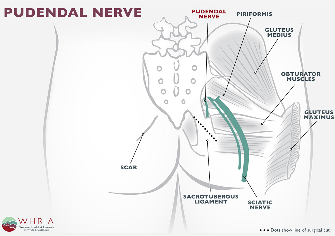 Pinched nerve lower back anal pain